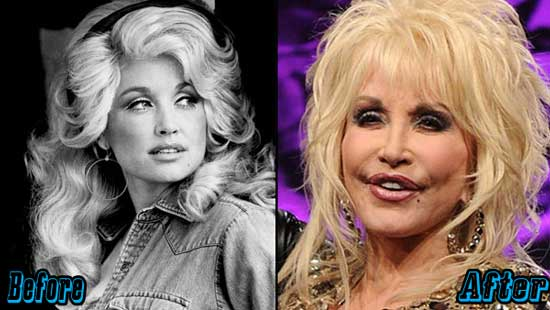 Dolly-Parton-Extreme-Plastic-Surgery